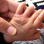 1歳1ヶ月のアトピーが出てしまったガサガサな手