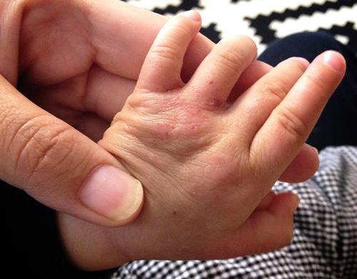 アトピー状態の手